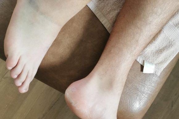 Tanguy Ostéopathie et entorse de la cheville