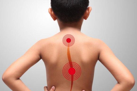 Ostéopathie et scoliose de l'enfant